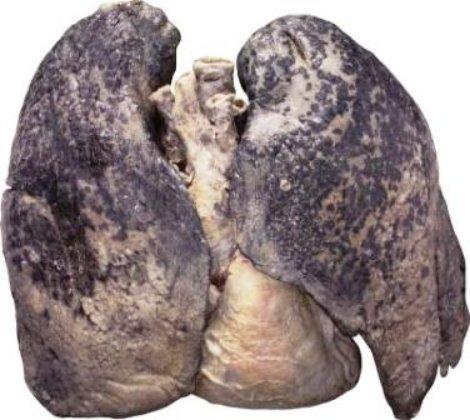 pulmonfumador_540